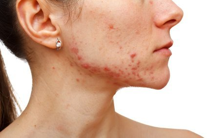 Benefits of microdermabrasion for acne scars