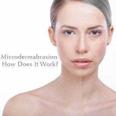 Microdermabrasion how does it work
