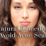 3 Natural Remedies to Avoid Acne Scars