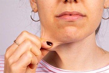 pinching face skin