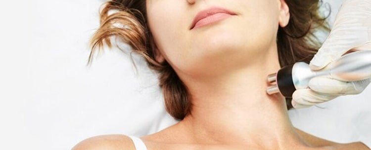 Radio frequency for skin tightening of the face or body - FAQ